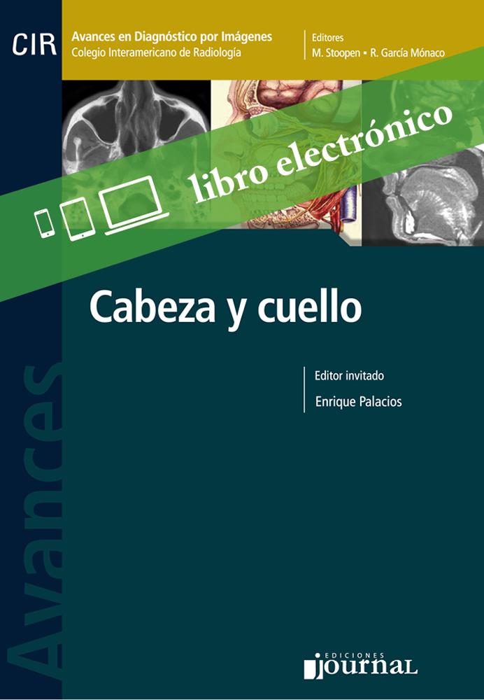 Avances en Diagnóstico por Imágenes: Cabeza y cuello E-BookLibrería ...